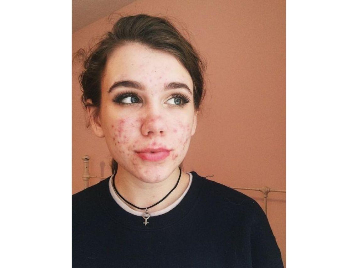 normalisons l'acné comme une évidence