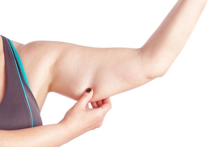 Pourquoi la cellulite apparaît-elle ?